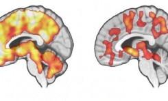Beslenme Beyindeki Endorfin Salgısını Tetikliyor