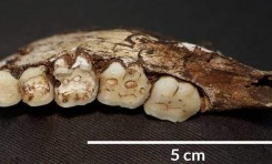 Homo naledi'nin Diyet Meselesi, Dişleriyle Çözülüyor