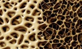Yaşa Bağlı Kemik Erimesi Arkasındaki Mekanizma
