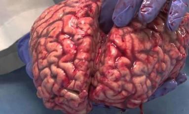 Gerçek Bir İnsan Beynini Yakından İncelemek