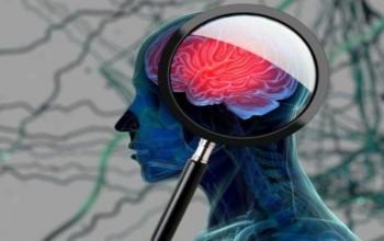 Alzheimer Beyinde Nasıl Bir Değişime Neden Oluyor?