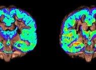 Alzheimer İlerlemesini Gösteren Görüntüleme Tekniği