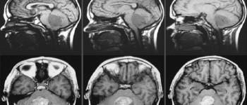 Çocuklarda Beyin Tümörü Tedavisinde Umut Verici Hedef