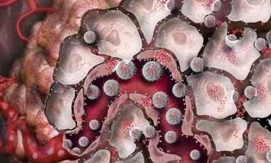 Nanopartiküller, Bağışıklık Hücrelerini Kanserle Savaşması İçin Uyarıyor