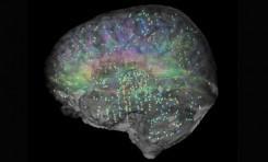 İnsan Beyni Evriminin Ardındaki Genetik Değişimler