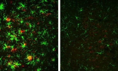BACE1 Enzimi İnhibisyonu İle Alzheimer Durduruldu